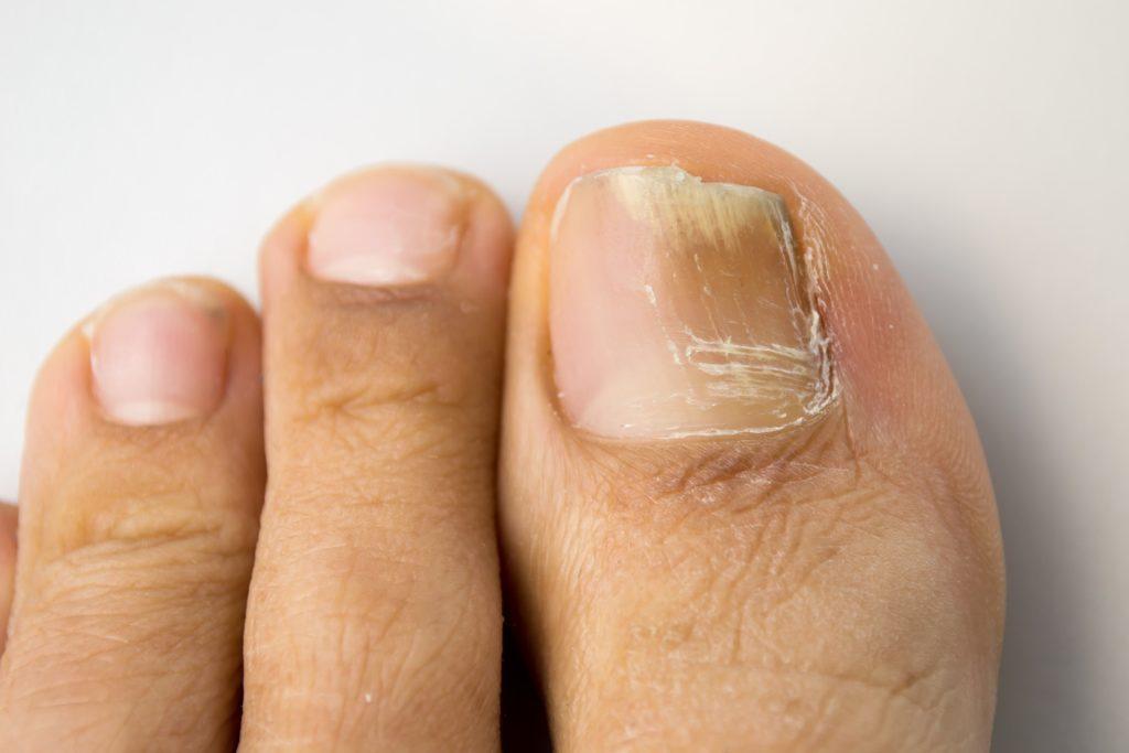 Onicomicosis - Hongos Uñas Dermatología