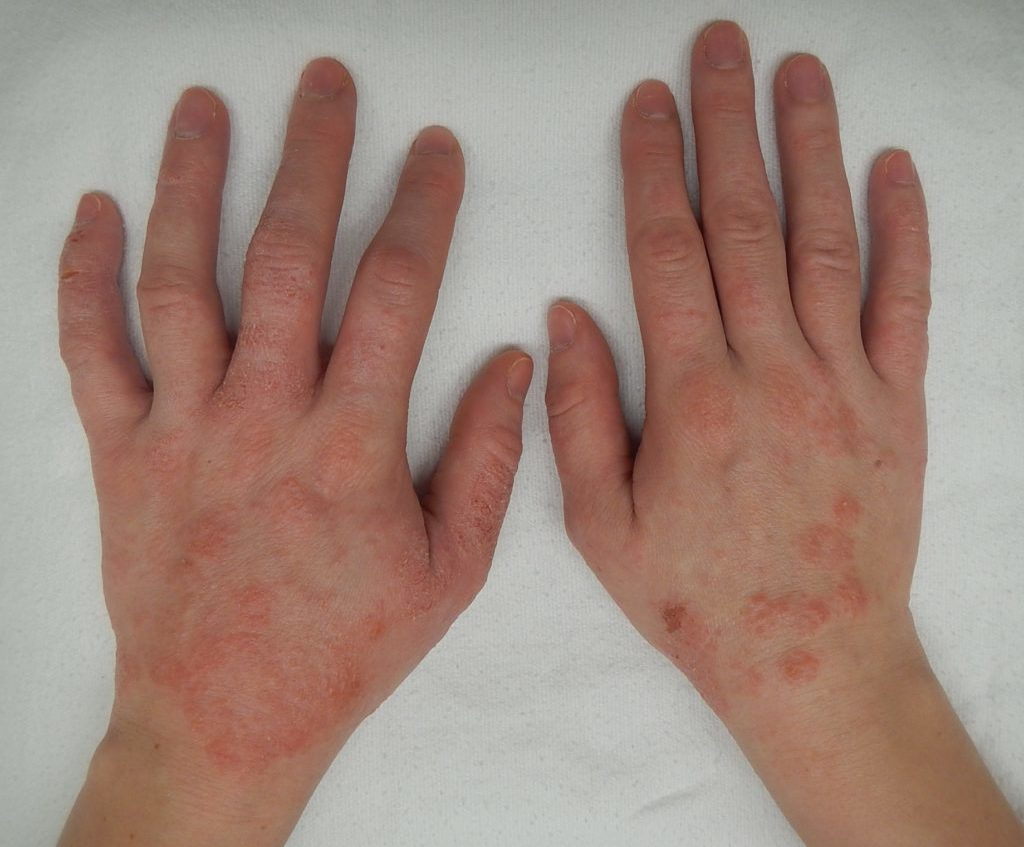 Dermatitis de contacto - Dermatología