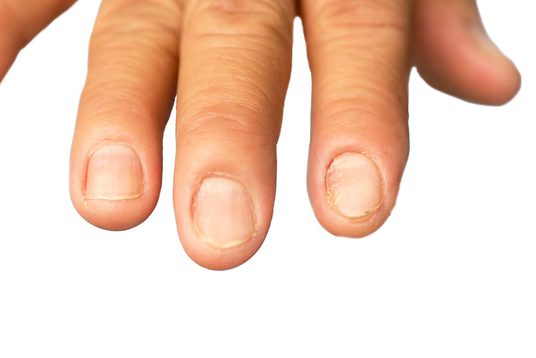 Uñas Inflamadas - Dermatologia medellin